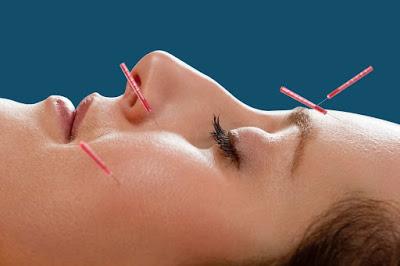 Cara Menjaga Kecantikan Dan Awet Muda Dengan Akupunktur